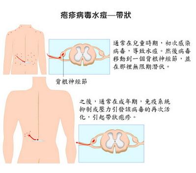 带状疱疹图片初期症状图片(2)
